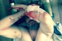 Мужчина ослеп после пыток вполиции иразочаровался вроссийском правосудии